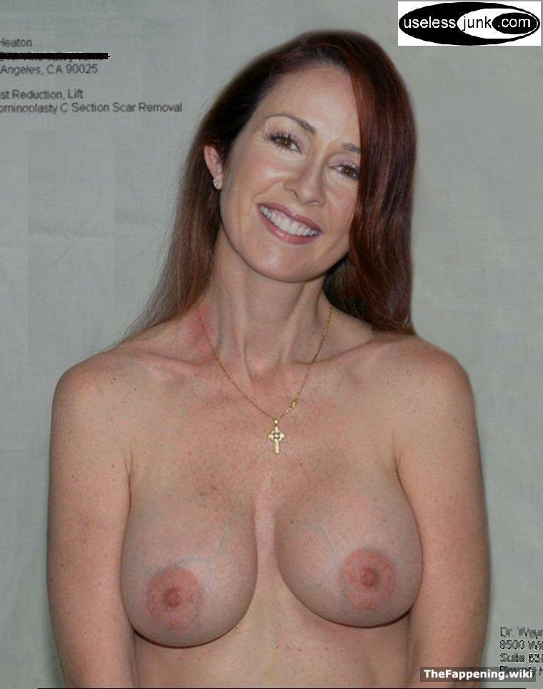 Patricia heaton porn