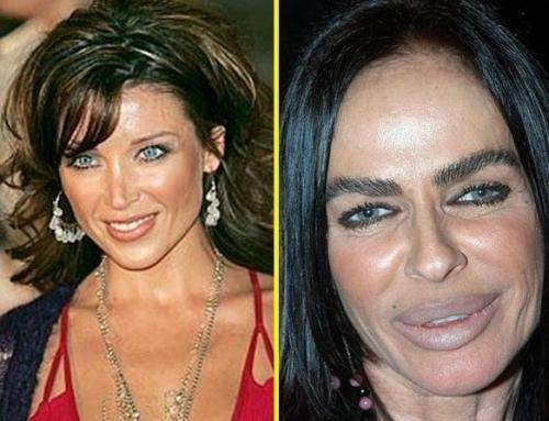 Plastic surgery gone bad