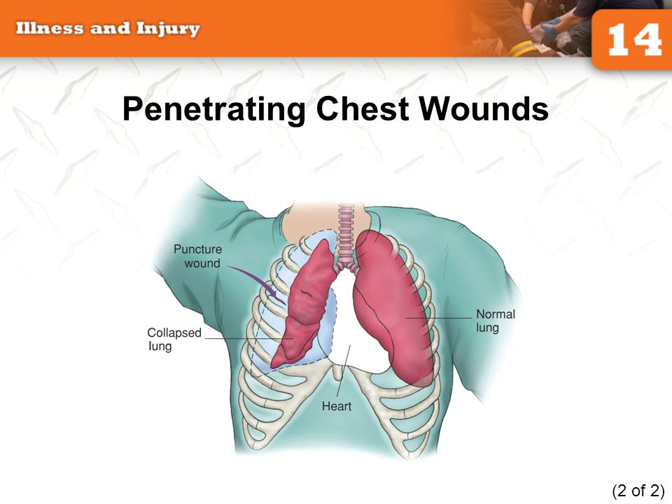 trauma Penetrating chest