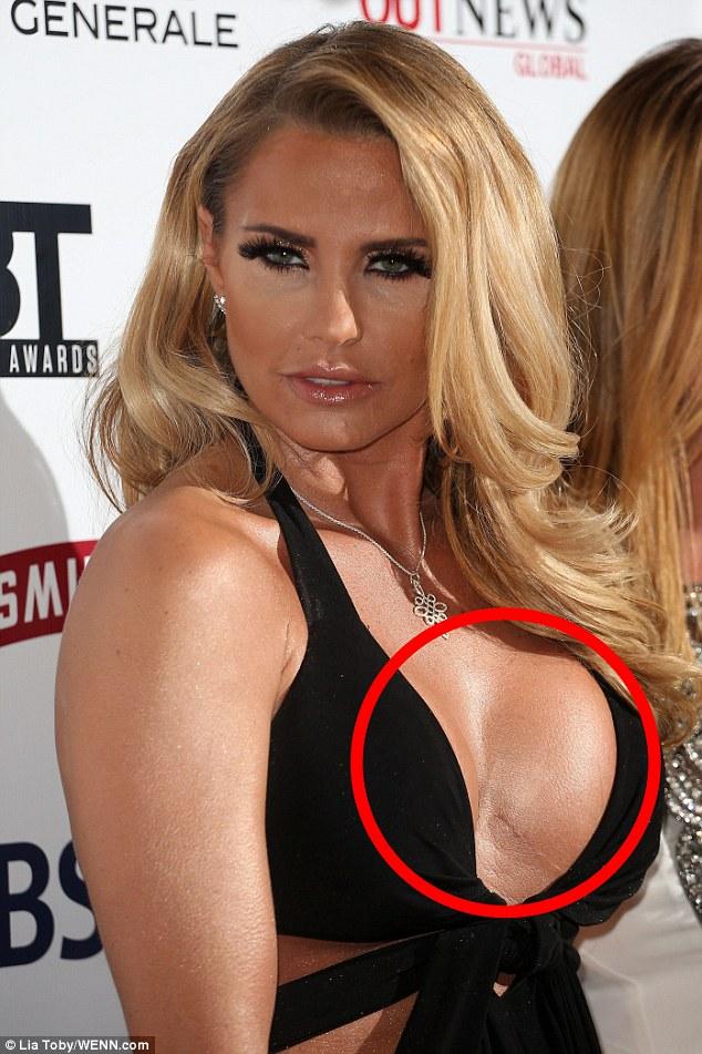 Katie price boobs