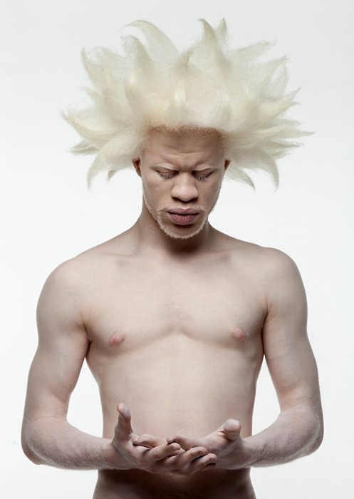 Naked albino man