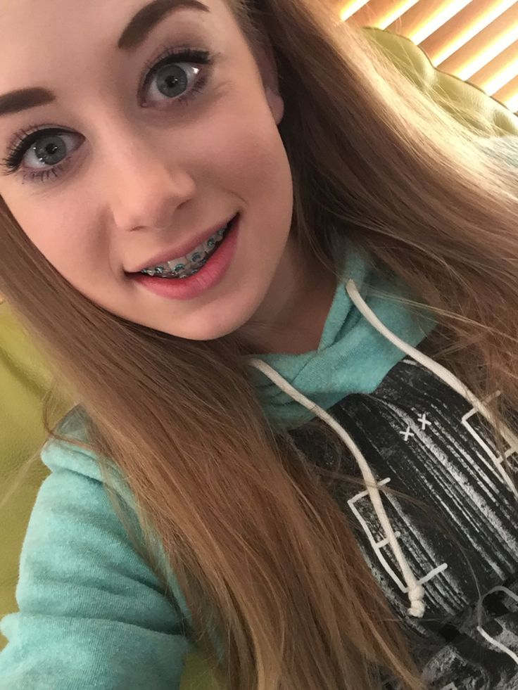 Girls with braces selfie teen