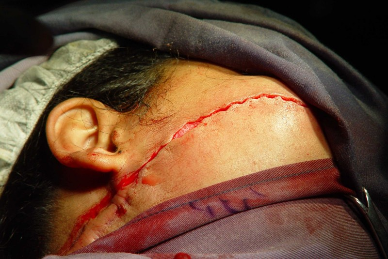 beheaded indonesia girls Christian