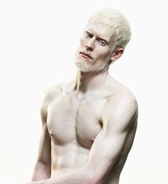 Naked albino man