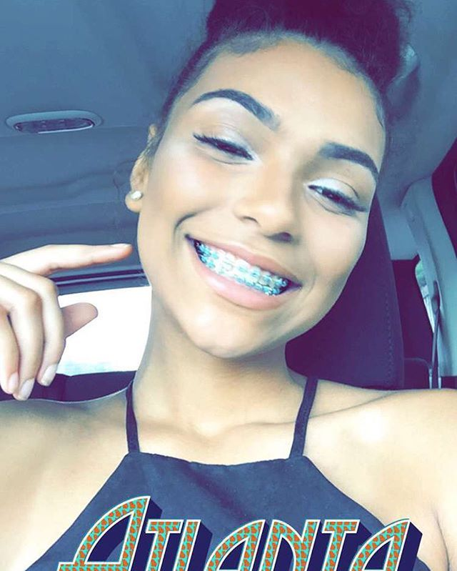 Cute teens with braces facial