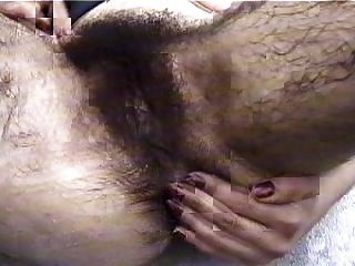 Abnormal hairy pussy