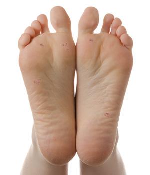 Hpv plantar warts on feet