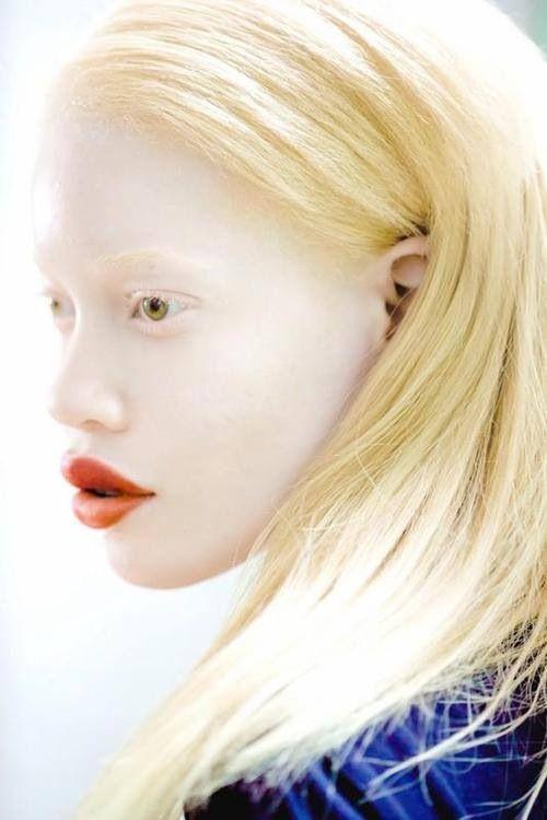 Black albino woman nude
