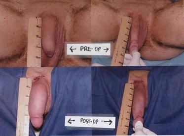 Penis girth enlargement surgery