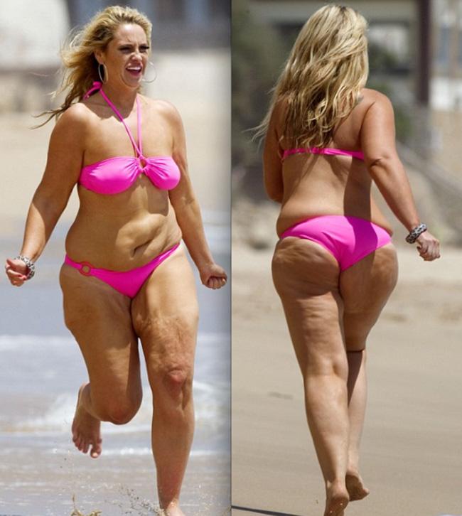 cellulite bikini butts Fat