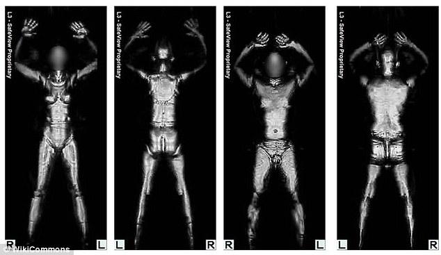 X ray girl naked